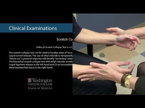 utility-of-scratch-collapse-test-in-a-case-of-failed-carpal-tunnel-releases