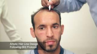 Hair Transplant in Delhi- Hair Transplant Session of Ramandeep Singh, Indian Hockey Player at DHI