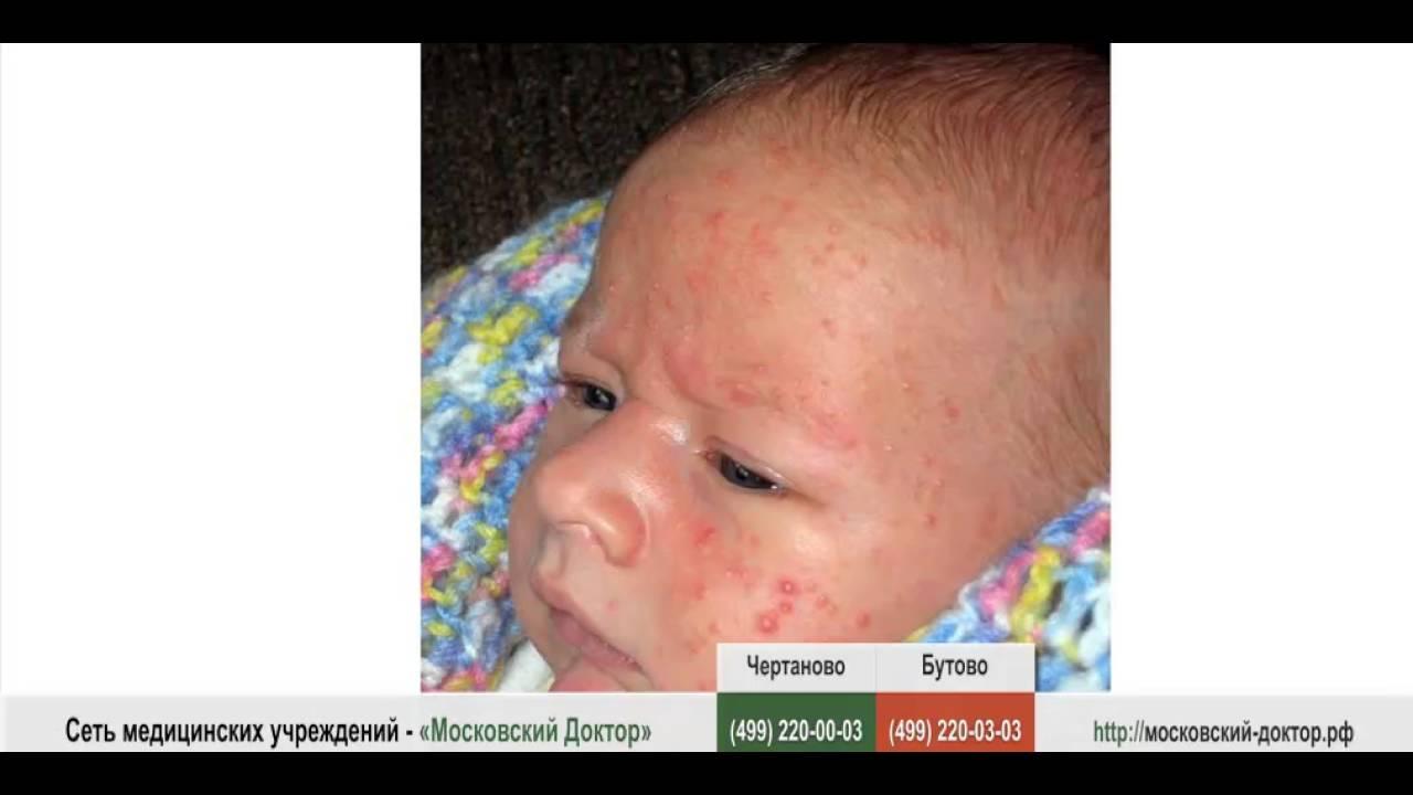 симптомы аллергии у взрослых фото