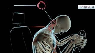 Phoenix Chiropractor | What is Whiplash | Personal Injury Doctor