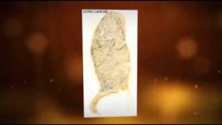 Asbestos Exposure Utah
