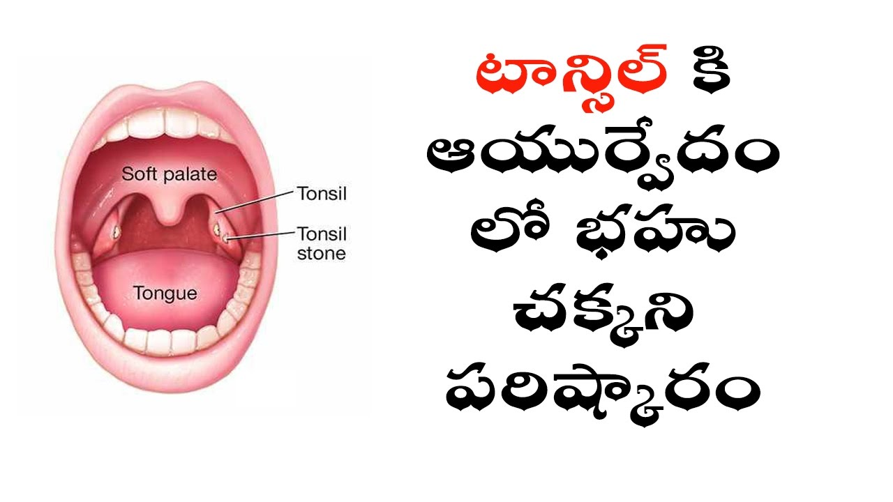 Tonsils Home Remedy In Telugu