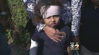 Dog Attacks Girl In Bayonne
