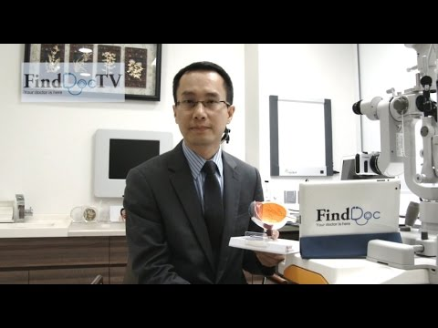 青光眼 專題 - 鄧維達眼科專科醫生@FindDoc.com - YouTube