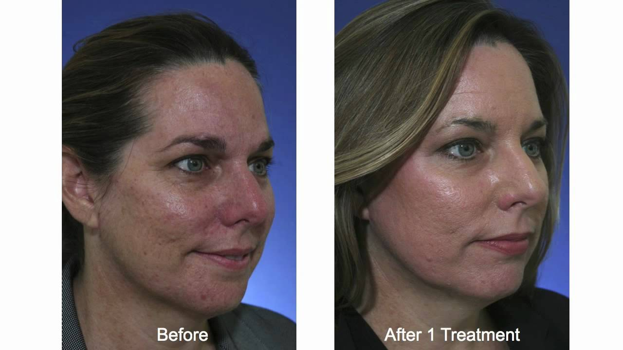 Acne Scar Treatment With Fractional Co2 Laser Doovi