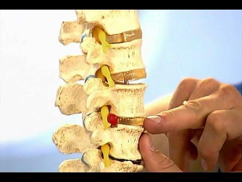 Как лечить шейный остеохондроз. Проблемы с позвоночником