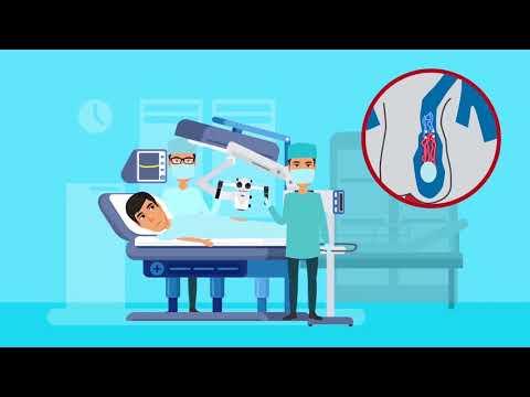 Лечение варикоцеле с помощью микрохирургии