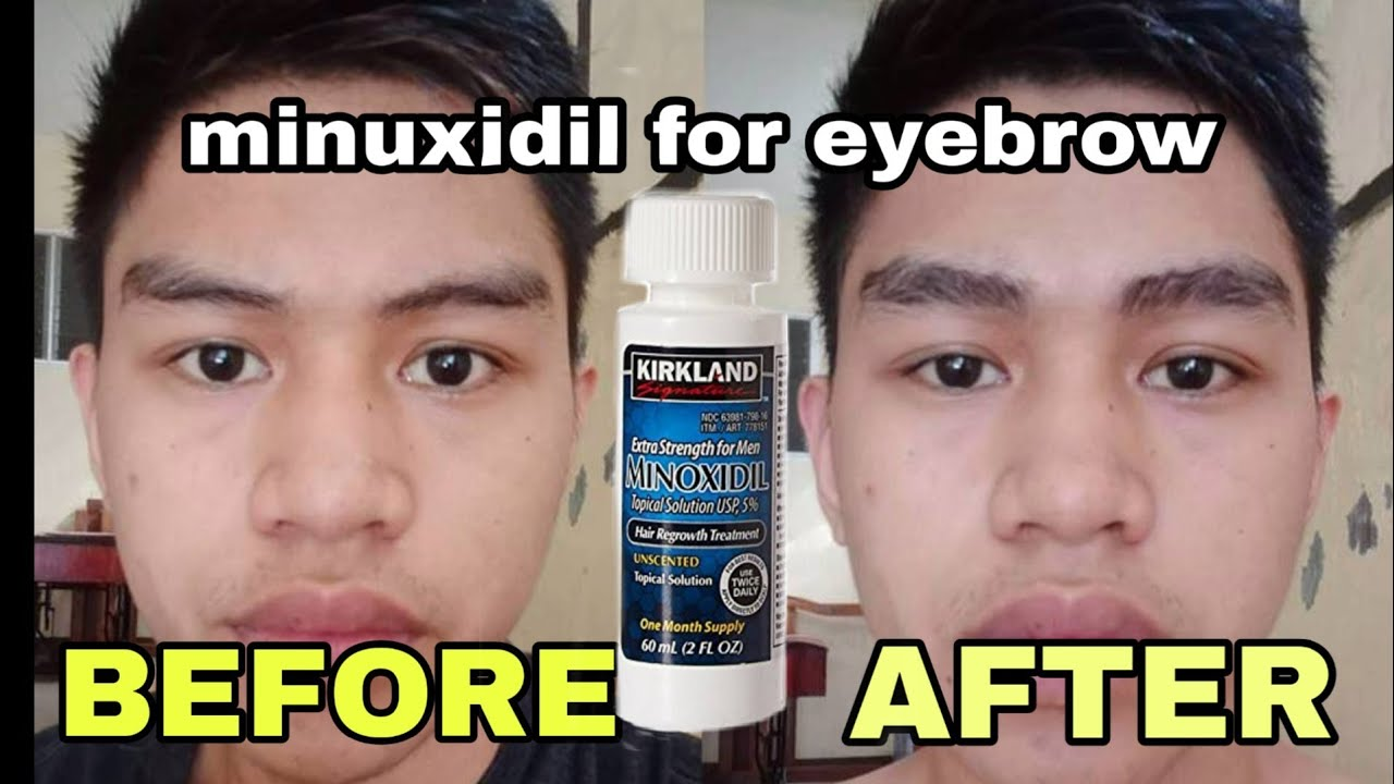Minoxidil for eyebrow!! Effective nga po ba? Let's review ...