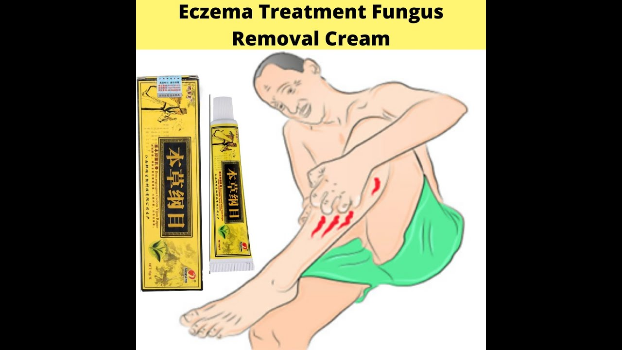 Antibacterial Eczema , Dermatitis, Itching Treatment Fungus Removal Cream Skin Care Plaster