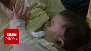 Mass breastfeeding event attracts 2,000   BBC News