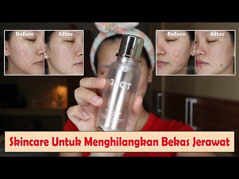 SERUM VITAMIN C UNTUK MENGHILANGKAN BEKAS JERAWAT 3ACT VC MELATONIN SERUM - YouTube