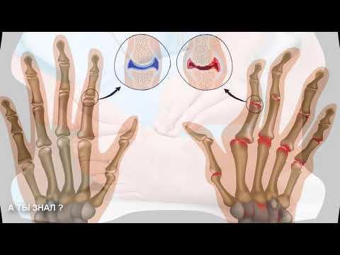 Инфекционный артрит - причины, симптомы, диагностика и лечение