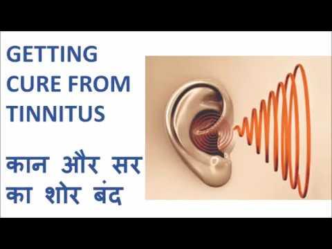 treatment-for-tinnitus,-hyperacusis-and-dizziness---टिनिटस,-शोर-चुभना-और-चक्कर-को-ठीक-करे