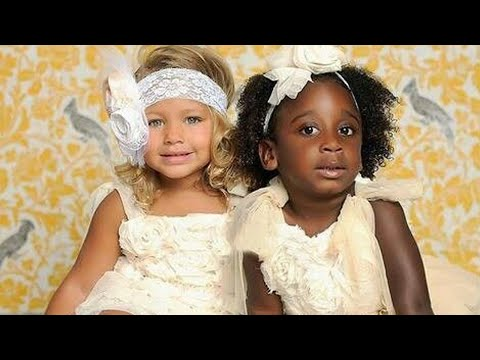 Mom's Twins Born Different Colors. 18 Years Later, This Is What They Look Like