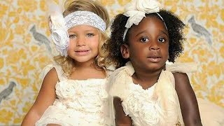 Download Mom's Twins Born Different Colors. 18 Years Later, This Is What They Look Like Mp3 and Videos