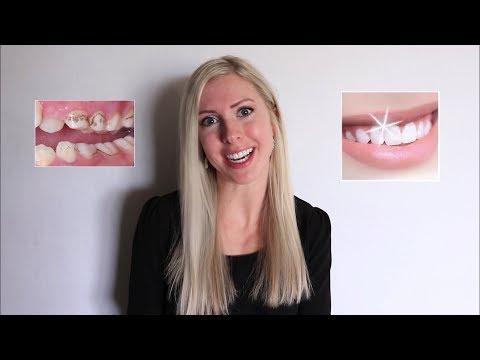 How to Install your QuickBreeze Oral Irrigator - Prevent Gum Disease and Promote Good Oral Hygieneиз YouTube · Длительность: 1 мин19 с