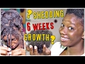 3 MAJOR Rules To SAFELY Remove Braids Shedding And Growth After 6 Weeks mp3