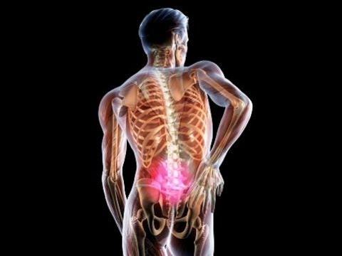 Остеохондроз: причины, симптомы, лечение остеохондроза