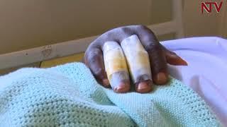 MP Francis Zaake fighting for his life at Lubaga hospital