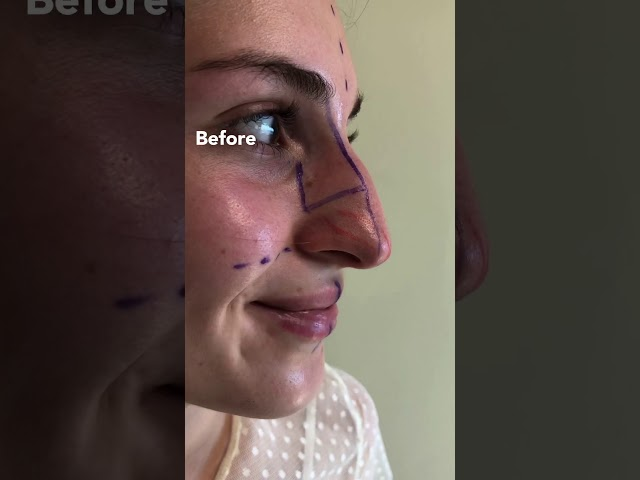 Nosejob before and after