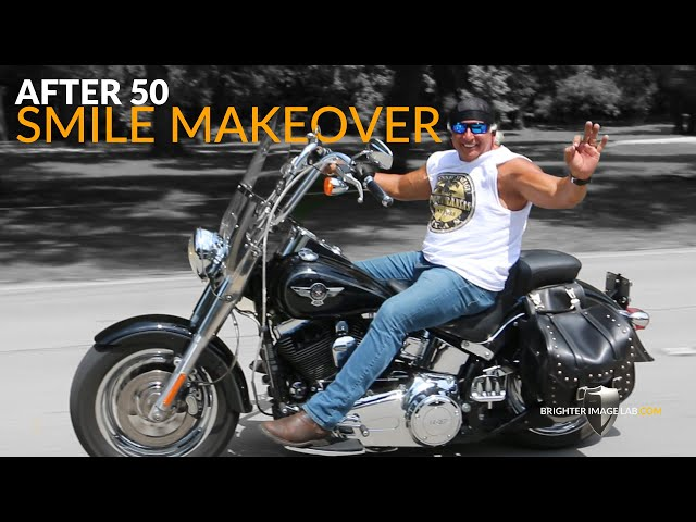 Over 50 Smile Makeover for Body Builder - Must See - Incredibil Dental Veneers by Brighter Image Lab