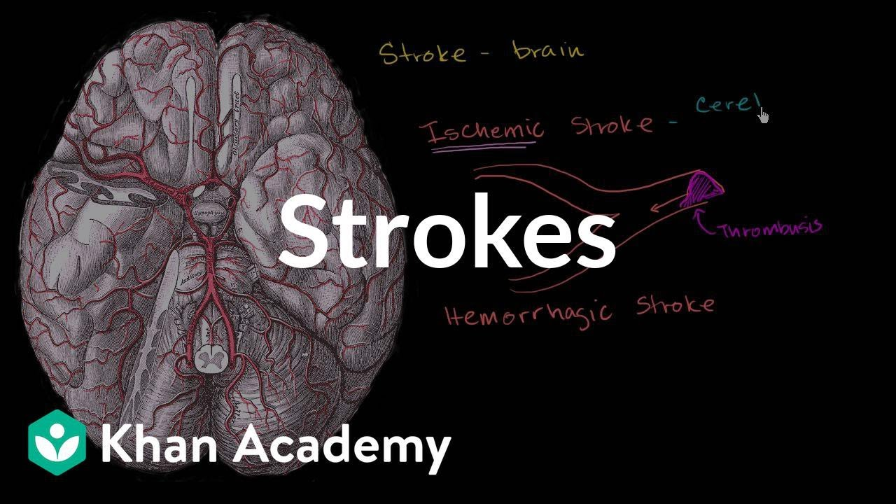 Strokes | Miscellaneous | Heatlh & Medicine | Khan Academy - YouTube