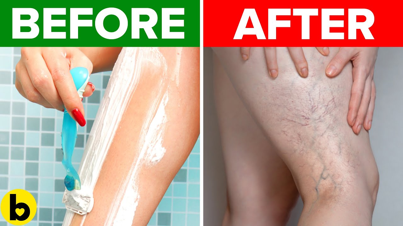 Stop! This Could Damage Your Veins