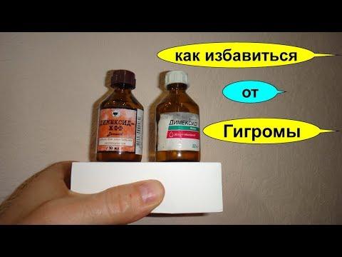 Лечение гигромы димексидом в домашних условиях без операции