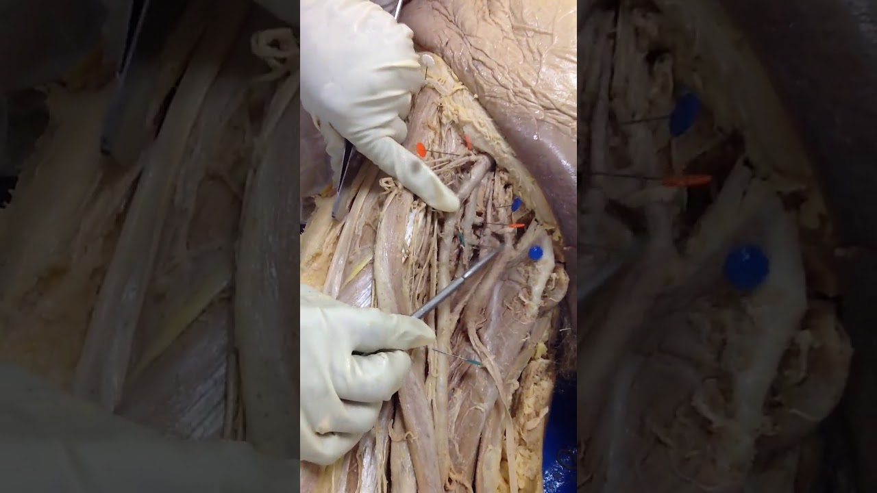 Femoral Artery And Branches Dissection Of Cadaver Human Anatomy Lab