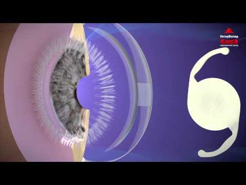 Врожденная катаракта - признаки, симптомы, лечение