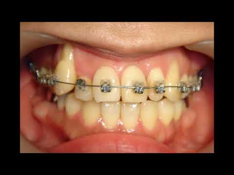 Orthodontic library F. Dental crowdingChart No.3822