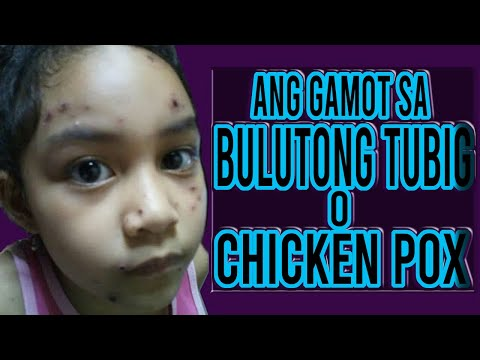 How To Cure Chicken Pox In Just 7 Days+ Bulutong Tubig Updates Part 2
