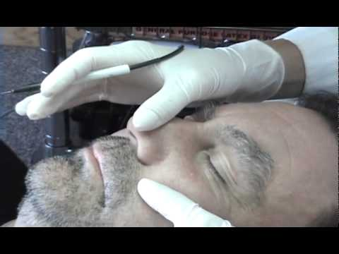 Sebaceous Hyperplasia Removal | FunnyDog TV