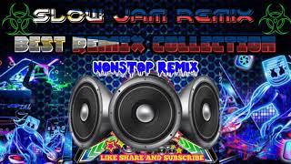 Best Slow jam Remix Nonstop Song Collection Opm Best Remix, LOVE SONG REMIX, SUPER BASS,Disco Rem
