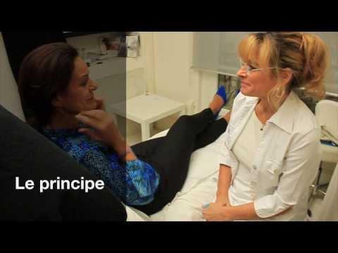 La mésothérapie plaquettaire (PRP)