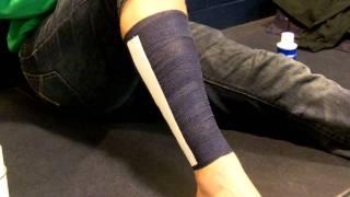 Shin Splint Taping