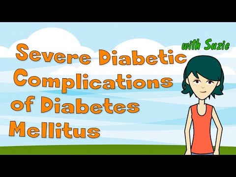 severe-diabetic-complications-of-diabetes-mellitus-to-know-the-facts-about