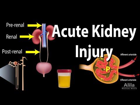 Acute Kidney Injury, A.k.a. Acute Renal Failure, Animation