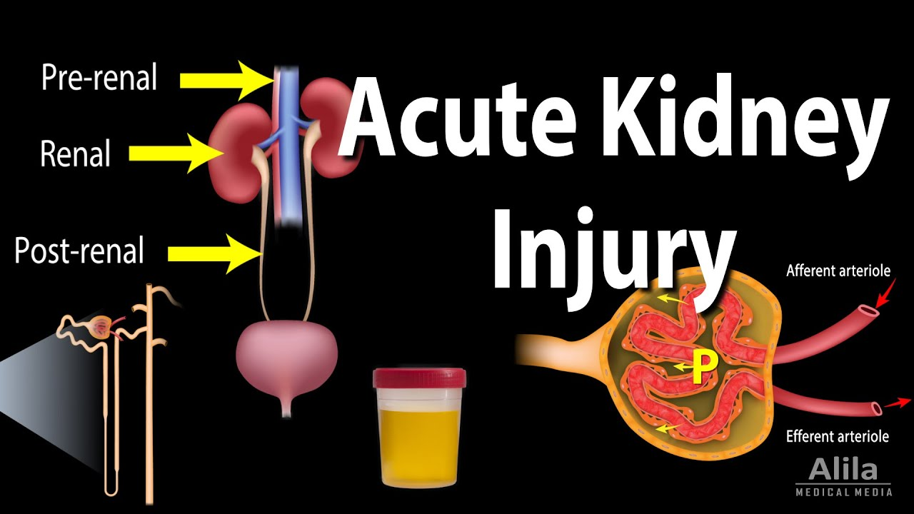 What is AKI in medical terms