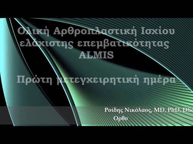Ολική Αρθροπλαστική Ισχίου ALMIS - 24 ώρες μετά - Δρ. Ν. Ροϊδης