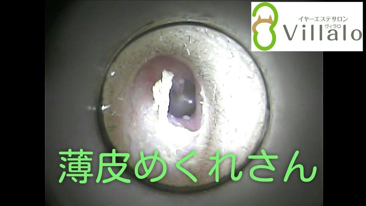 耳掃除動画vol.94「薄皮めくれさん」