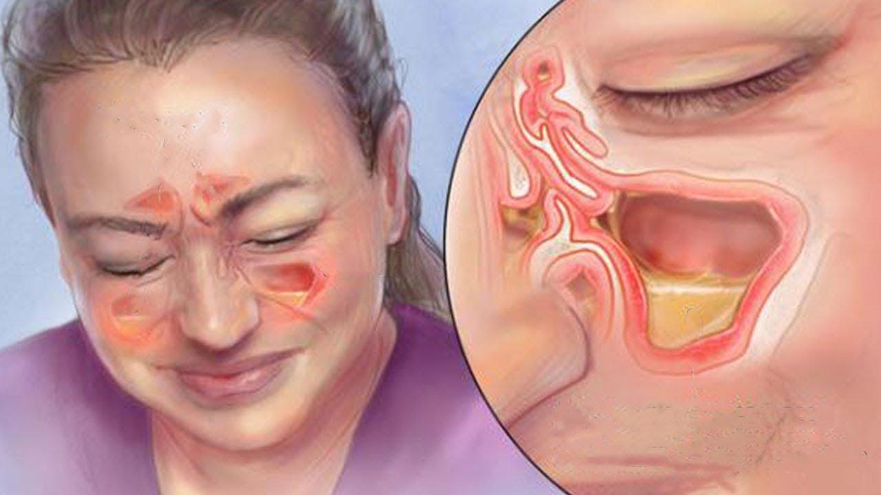 nebenhöhlenentzündung dauer