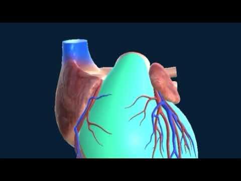 infarto-agudo-al-miocardio