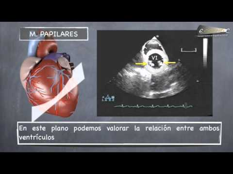 planos-ecocardiogrÁficos