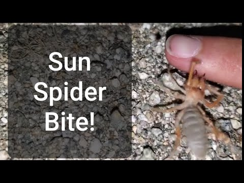 Crazy Cody's Creatures: Sun Spider Bite!