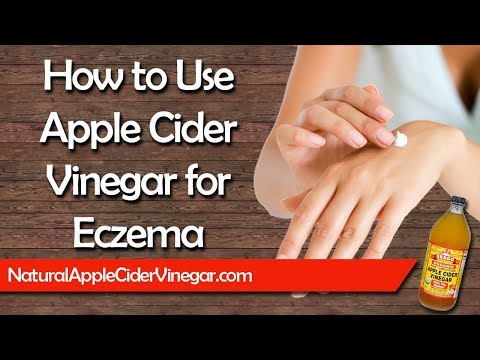 The #1 Best Natural Home Remedy for Eczema