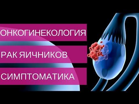 РАК ЯИЧНИКОВ симптомы и диагностика на 1, 2, 3, 4 стадии