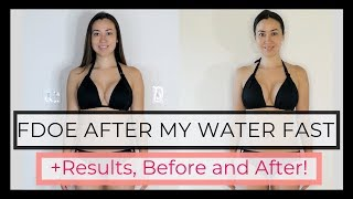 What I Eat in a Day After I Break My Prolonged water fast (FDOE)