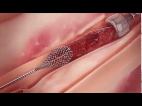 Тромбоз - лечение болезни. Симптомы и профилактика