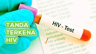 Waspada ! Ini Tanda-Tanda Kamu Terkena HIV !